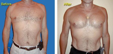 Все о пластической операции на груди
